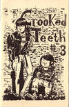 Crooked Teeth #3