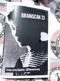 Brainscan #21